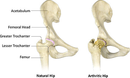 difference between natural hip and arthritic hip